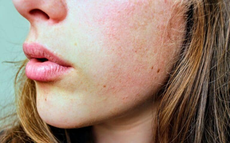 How To Get Rid Of Dry Skin On Face Fast