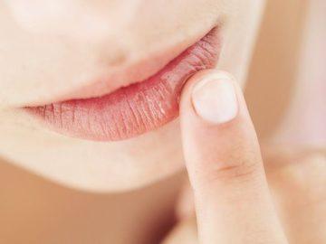 Chapped Lips Remedy