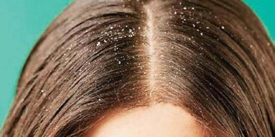 Dandruff Problem- Benefits Of Coconut Oil For Hair